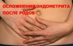 Эндометрит послеродовой: причины, опасности, методы лечения и профилактика
