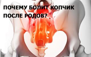 Болит копчик после родов
