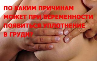 По каким причинам может при беременности появиться уплотнение: диагноз, симптоматика, проявление