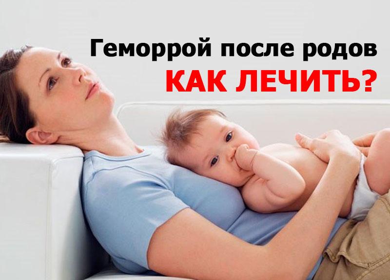 Геморрой после родов как лечить
