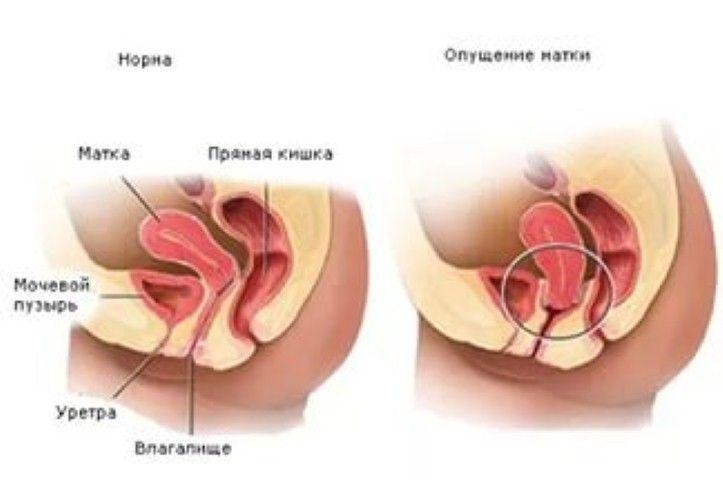 Смещение матки при беременности