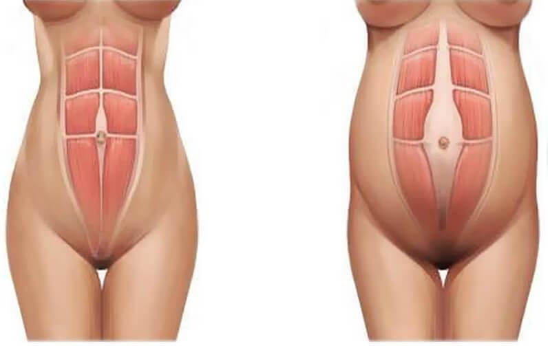 мышцы живота до родов и во время беременности