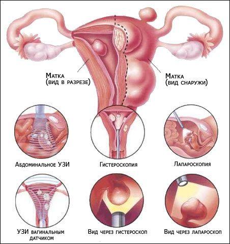 шейка матки после лечения