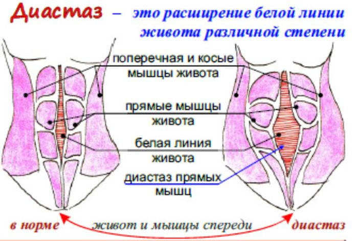 схема разделения мышц живота