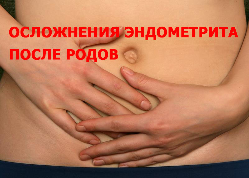 Осложнения эндометрита после родов