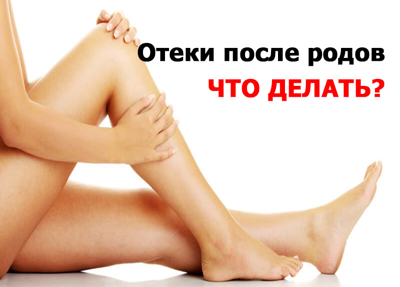 отекли ноги после родов