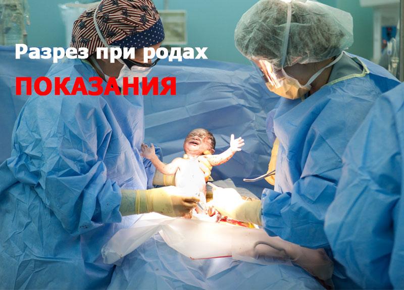 разрез при родах