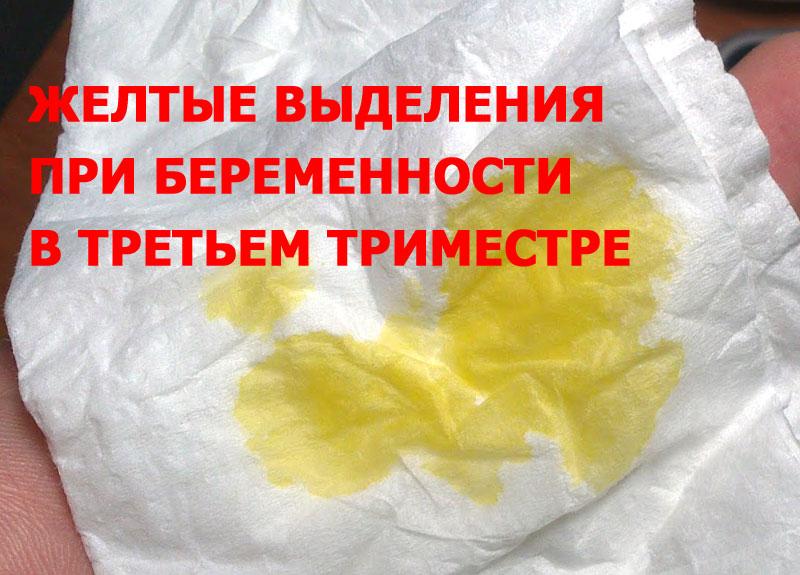 Желтые выделения при беременности в третьем триместре