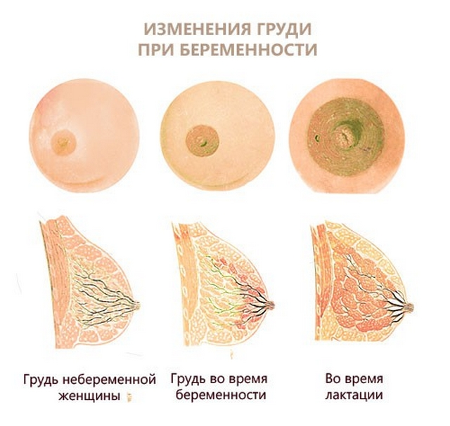 Изменение груди при беременности
