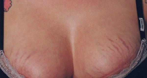 формирование вен на груди у беременных